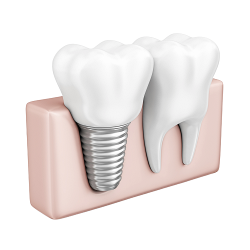 dental-implant-remov.png