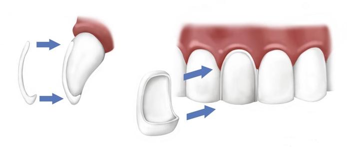 https://ds-spb.com/uslugi/protezirovanie-zubov/viniry/